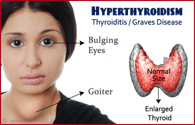 Hyperthyroidism Treatment in Ayurveda