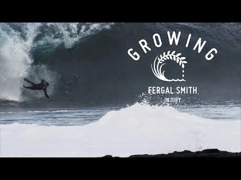 Fergal Smith - Growing - Injury Ep3
