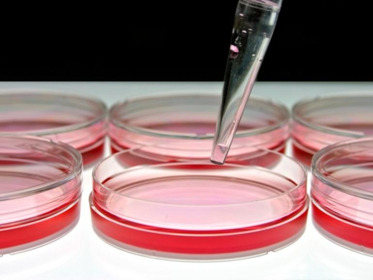A Brief Introduction to Stem Cell Therapy