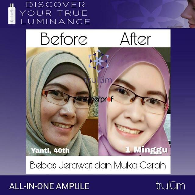 Makin Cantik atau Ganteng Tanpa Harus Ke Dokter Kecantikan di Kuta Malaka Aceh Besar