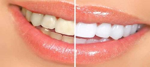 Evde Diş Beyazlatma Nasıl Yapılır?