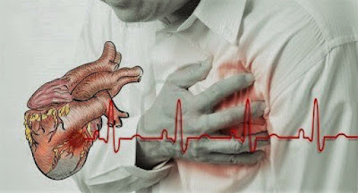 Kenali Gejala Dan Penyebab Penyakit Jantung Koroner Sejak Dini