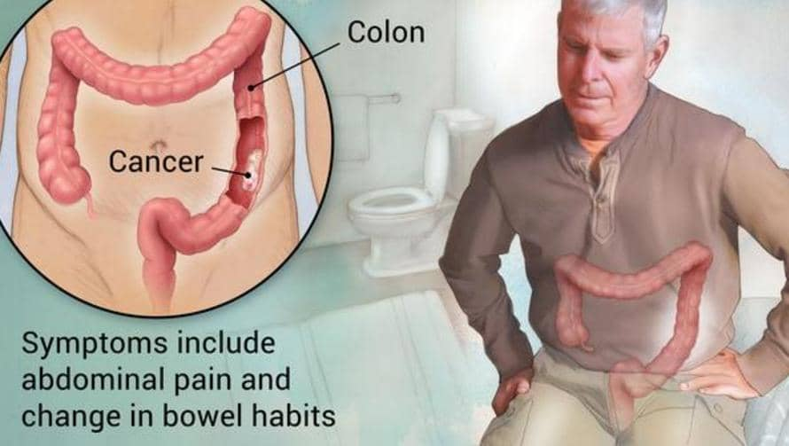 Bowel Cancer Back Pain