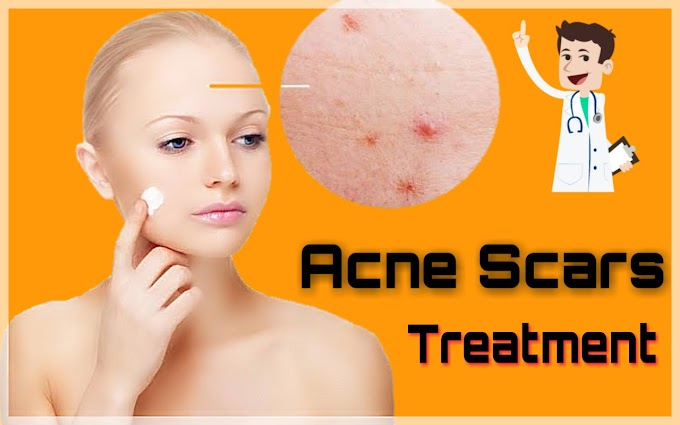pimples hatane ka tarika 100% working treatment