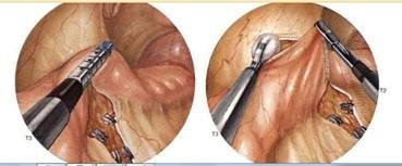 Teknik Operasi Colotomy Dan Colectomy pada Hewan (Bedah Sistma Digesti)