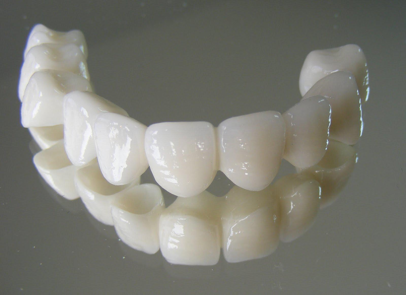 Diş Kaplama Kimlere Önerilir