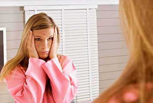 Rekomendasi Cream Penghilang Jerawat Pada Wajah
