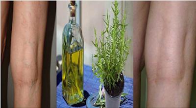Éliminer la cellulite et les varices avec l'alcool de romarin!