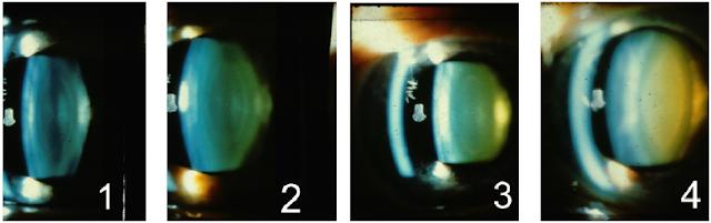 cataract grading