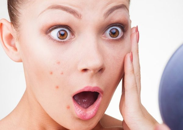 What Your Acne Is Telling About You And Your Body ACSP Shop Beauty & Health