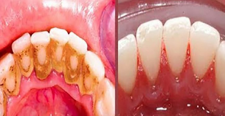 Here Is A Simple And Effective Remedy For Removing Plaque At Home. (You Will Find A Good Breath)