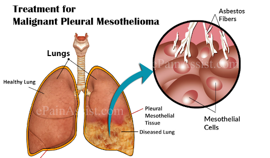 Elective, Natural and Complementary Mesothelioma Treatments  - Mesothelioma Law Firm