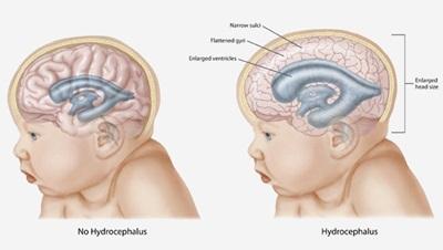 Obat Hidrosefalus Paling Aman Untuk Bayi