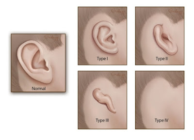 http://www.specialistshospital.com/plastic-and-cosmetic-surgery/reconstructive-surgery/ear-reconstruction-microtia/