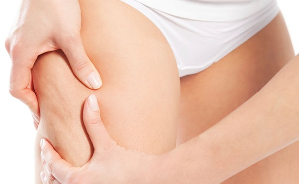 mulher apertando a perna com celulite