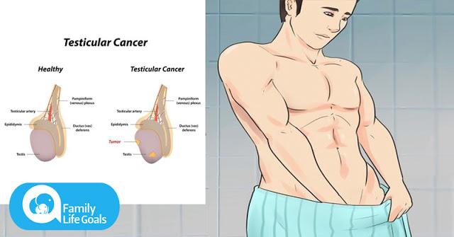 5 Signs of Testicular Cancer Most Men Are Too Embarrassed To Talk About (and 5 Signs it Has Spread)