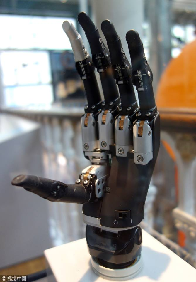 Artificial Intelligence (AI) hand gives amputee a new hold on life