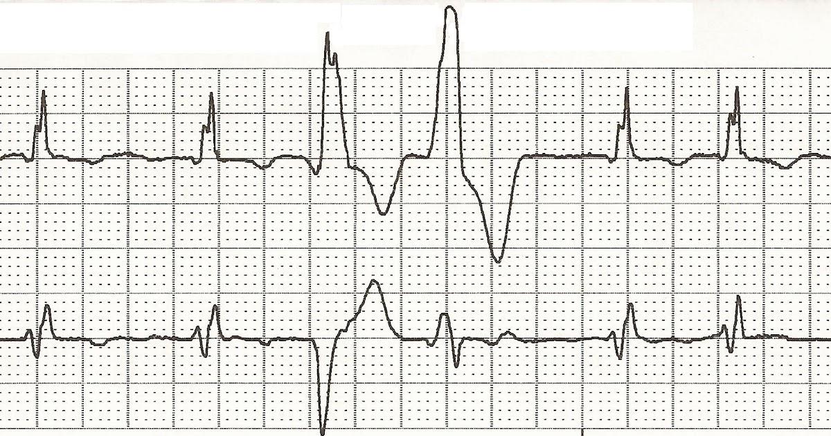 Float Nurse: EKG Rhythm Strip Quiz 47