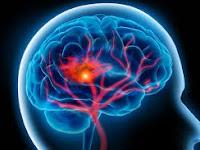 apa penyebab penyakit stroke ringan?