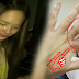 Ellen Adarna Close To Losing Her FInger , She Was Rushed To the ER Immediately