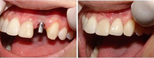có nên cắm ghép răng implant không -3