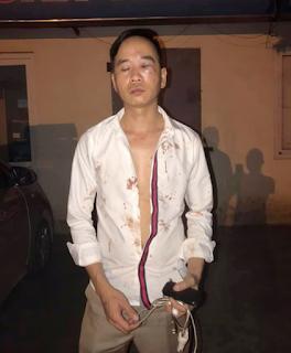 Tài xế taxi bị quỵt tiền và bị đánh nhừ tử giữa đêm khuya