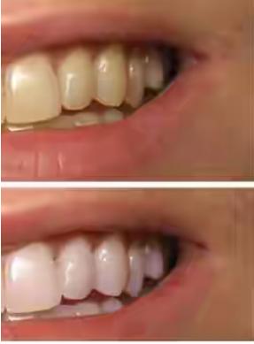 Gigi Anda Terlanjur Kuning? Hilangkan Dengan Cara Ini