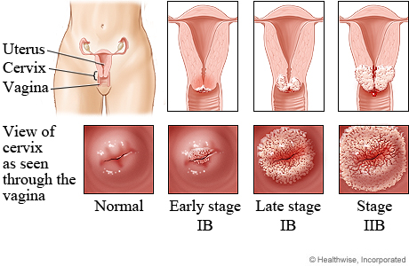 treating anal swelling after birth jpg 1152x768