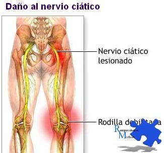 debilidad en la pantorrilla dolor en la rodilla
