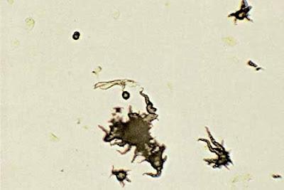 Ammonium biurate crystals