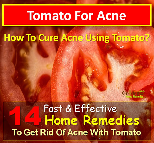Tomato For Acne, Tomato Acne, Tomato And Acne, Is Tomato Good For Acne, How To Use Tomato For Acne, How To Get Rid Of Acne, How To Get Rid Of Acne Fast, Home Remedies For Acne, Acne Treatment, How To Cure Acne, Acne Home Remedies, How To Cure Acne Fast, Acne Remedies, Home Remedies For Acne Treatment, Easy Acne Treatment, Acne Treatment, How To Treat Acne Fast