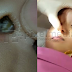 (Video) Tak Sangka Anak Masukkan 'Benda' Dalam Hidung