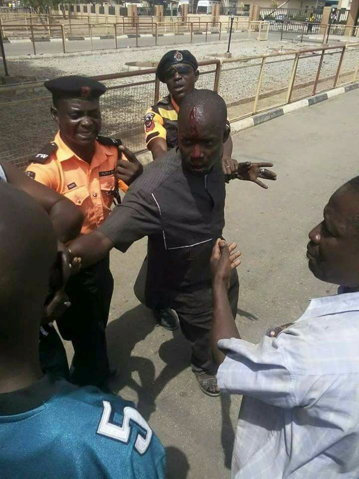 Traffic police breaks driver's head in Zamfara State