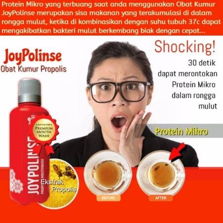 30 Menit Dapat Rontokkan Protein dengan Joypolinse