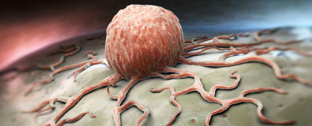 تنشيط جين واحد يعكس سرطان القولون في الفئران فقط في أربعة أيام