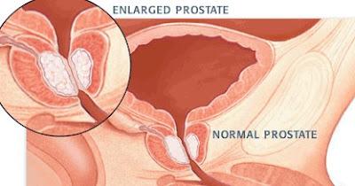 Mengenal Lebih Dekat Penyakit Bph (Enign Prostatic Hyperplasia)