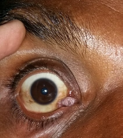 Caruncle Cyst on eye