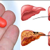 THIS COMMON DRUG DESTROYS YOUR LIVER (DOCTORS WARN)