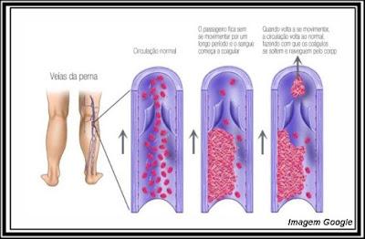 Infografico trombose venosa