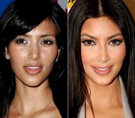 Kim Kardashian Before And After Surgery Simply4dreams