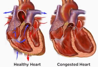 Obat Tradisional Gagal Jantung Kongestif