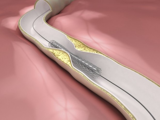 Amazing Science Angioplasty What Are Stents