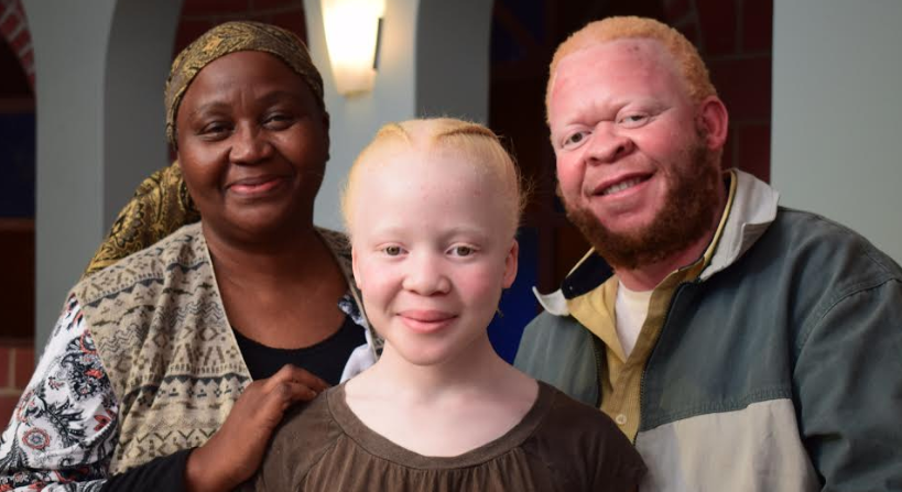 South Africa's Most Watched Telenovela Addresses Albinism Myths & Killings; And We're So Here For It!