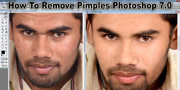How To Remove Pimples Photoshop 7.0