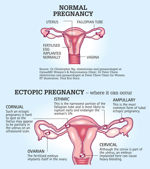 Ectopic pregnancy - A close shave with death