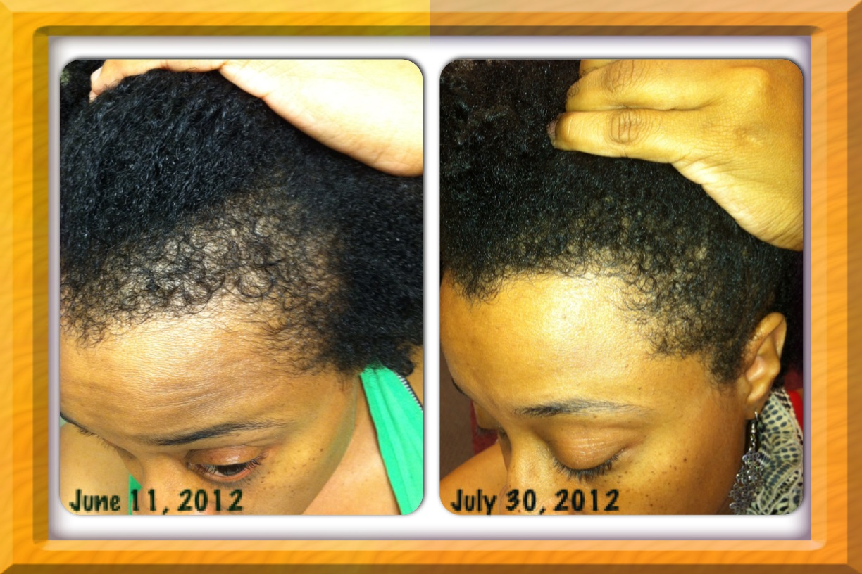 I M So Pleased With The Results Ll Provide Another Update As My Hairline Recovers