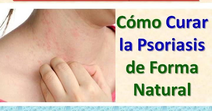 El champú a la psoriasis y seboreynom la dermatitis en