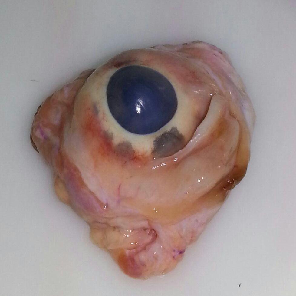 Anatomía aplicada: PRÁCTICA NÚMERO 3: Disección de un ojo de cerdo y ...