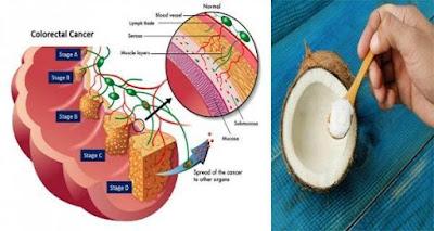 Después de 2 días de tratamiento de aceite de coco extermina 93% de las células de cáncer de colon in Vitro!