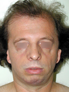 An adult with treacher collins syndrome  treacher collins syndrome images